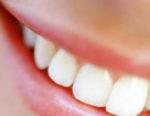 Sorriso bianchissimo