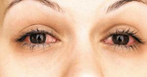 Curare i nostri occhi con i rimedi naturali